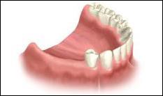 Several Teeth Missing